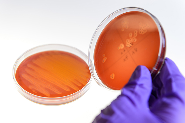 Plates showing MRSA resistant bacteria, right, and a normal culture, seen at the Anderson lab on Jan. 23, 2015. (Peter Morenus/UConn Photo)