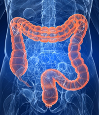 Itraconazole Targets Cell Cycle Heterogeneity In Colorectal Cancer Israel Molecular Medicine Portal